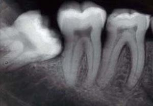 The Wisdom of Dry Socket: A Tale of Dental Redemption — Tony